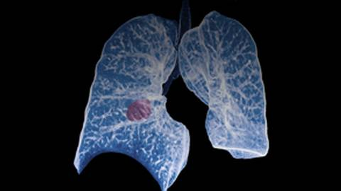 Optimizing Immunotherapy in NSCLC: Updates from Trials on Agents Targeting PD-L1