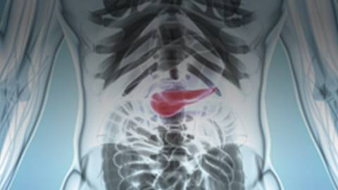 Pancreatic Cancer: Associated Signs, Symptoms, Risk Factors and Treatment Approaches
