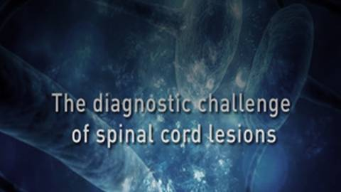 The Diagnostic Challenges of Spinal Cord Lesions in MS