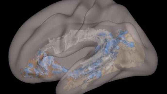 Screen-Based Media Linked to Structural Differences in Brains of Young Children