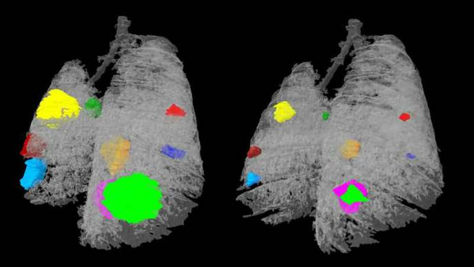 Combination Therapies Could Help Treat Fatal Lung Cancers