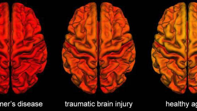 Brain Changes Following Traumatic Brain Injury Share Similarities with Alzheimer's Disease