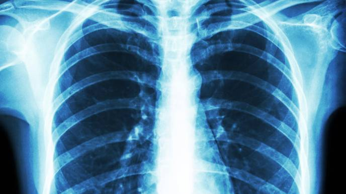 New Genetic Cause of Pulmonary Hypertension Identified