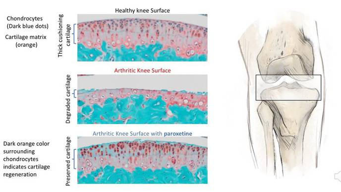 Common Anti-Depressant May Be 1st-Ever Treatment for Osteoarthritis