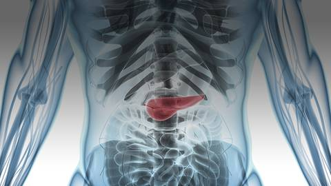 Perspectives on Pancreatic Cysts: How to Determine Malignancy
