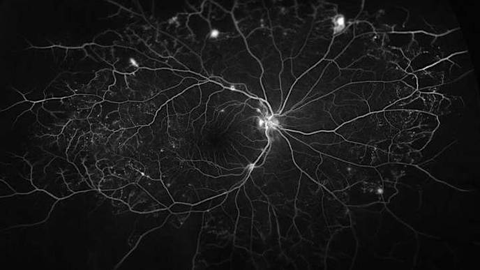 Helper Protein Worsens Diabetic Eye Disease