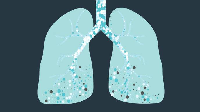 Promising Steps Towards a Treatment for Pulmonary Fibrosis