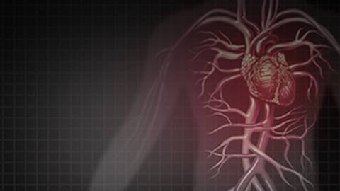 New Options to Reduce Cardiovascular Events in Atherosclerotic Cardiovascular Disease (ASCVD)
