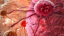 Research reveals cancer pathway to spreading through the body