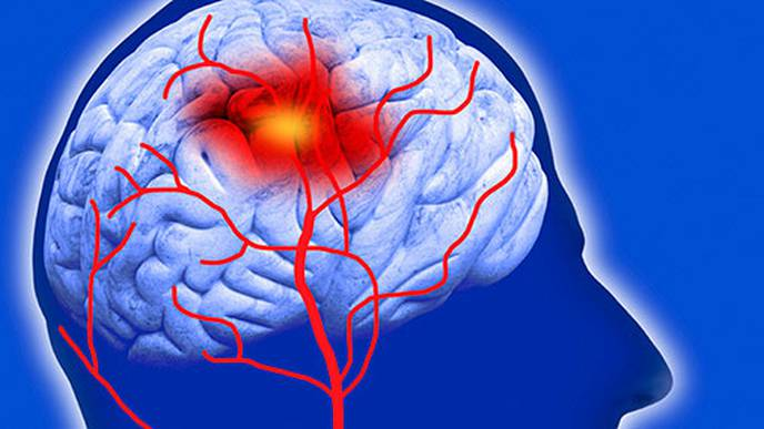 Study Finds Disparities in Access to Best Stroke Treatment