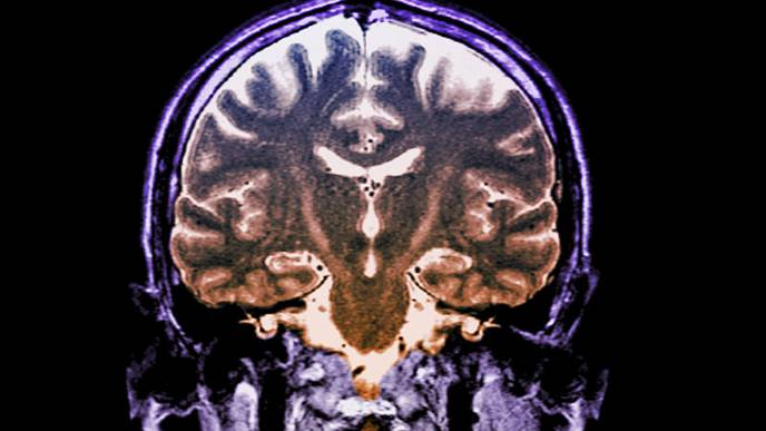Drug Combo Slows Progression of ALS, Could Mark 'New Era' in Treatment