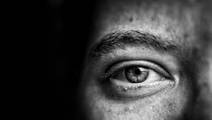Are Certain Eye Conditions Hereditary or Environmental?