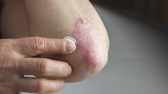 Severe Psoriasis Linked to Higher Risk of Death from 3 Types of Cancers