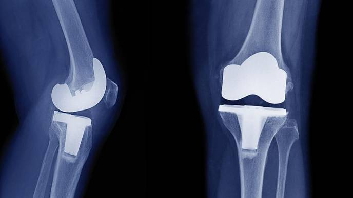 Most People Wait Too Long for Knee Replacement Surgery, Study Says