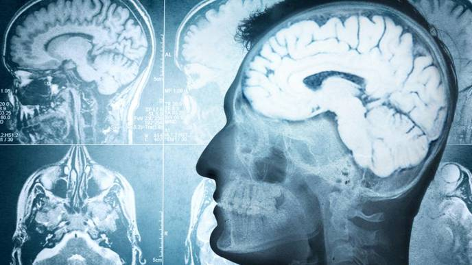 New Therapy Attacks Brain Cancer's Circadian Clock