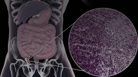 Crohn's & Colitis Congress 2021: Assessing the Role of Immunomodulators in IBD