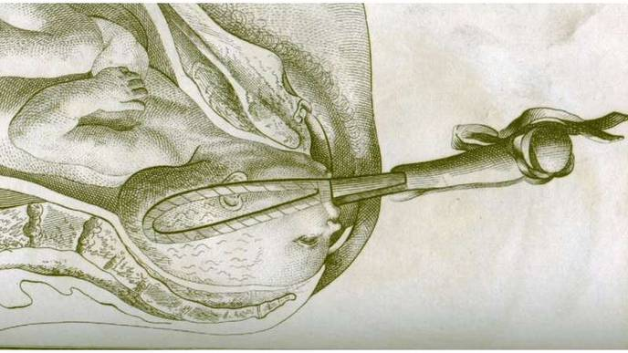 Op-Ed: How Forceps Permanently Changed the Way Humans Are Born