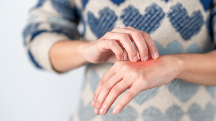 People with Psoriatic Disease Taking Methotrexate More Likely to Develop Liver Disease