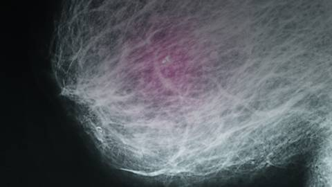 Breast Basics 101: What Every Woman Should Know About Breast Cancer Risk, Screening, and Detection