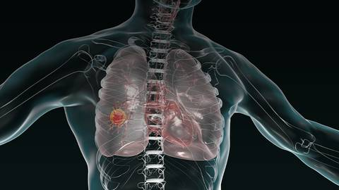 Examining Genomic Testing & Targeted Therapies in Lung Cancer