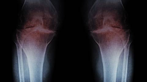 Osteoarthritis: Not Just a Wear-and-Tear Problem