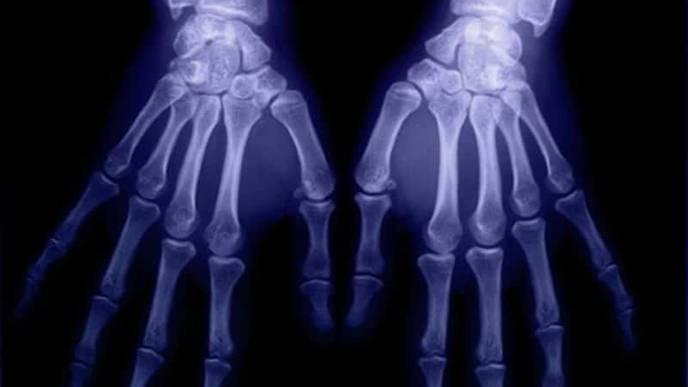 Common Sites of Bone Erosion in Rheumatoid Arthritis ID'd on Ultrasound
