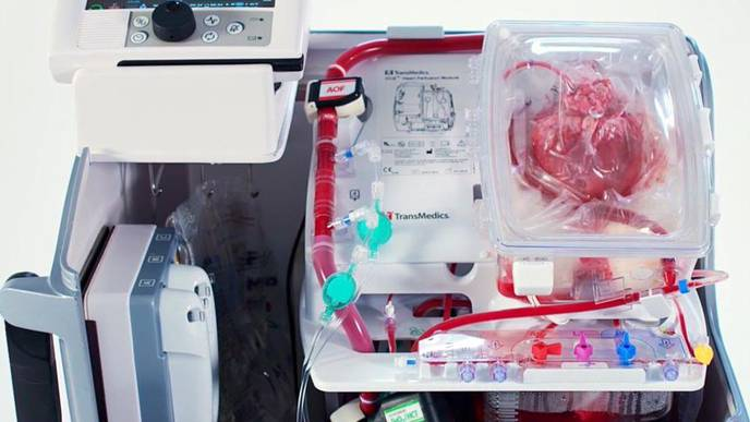 """How a Device Used to Revive a Heart Could """"Revolutionize"""" Transplants"""