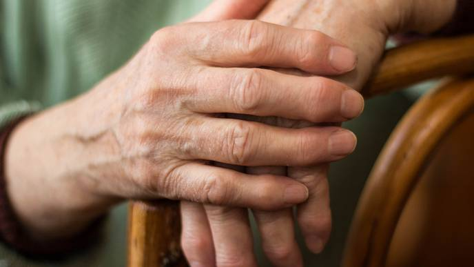 Patients with RA Have Low Awareness About CV Risk