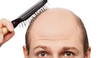 Osteoporosis Drug Has a Surprising Side-Effect, Scientists Say It Could Cure Baldness