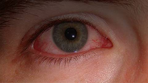 The Red Eye: Causes, Treatments, and Pitfalls for the Primary Care Physician