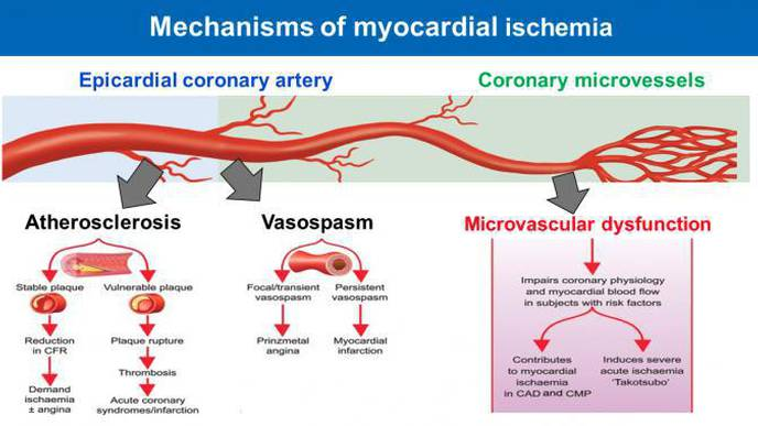 Important Global Health Problem Identified: Disease of the Smallest Heart Blood Vessels