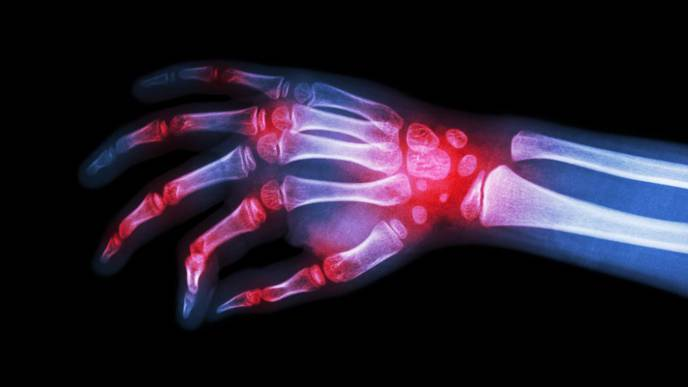 Half of People with Rheumatic Disease Have Trouble Paying for Treatment