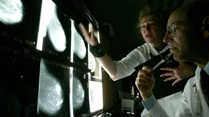 How Coronavirus Has Changed Cancer Screening & Care