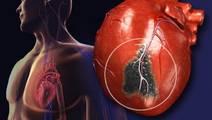 Understanding Silent Heart Attacks