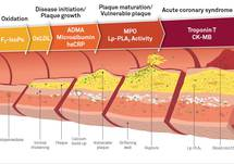 Inflammatory Biomarkers & Their Association with Atherosclerosis