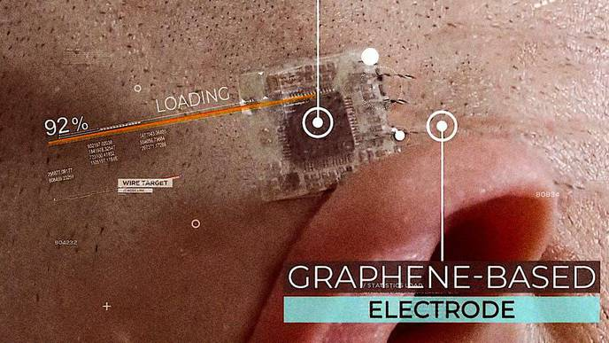 This Startup Wants to Tattoo Brain-Reading Electrodes on Your Skull