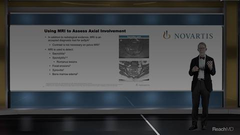 video Imaging Modalities in the Evaluation of Axial Disease for Segment 12213