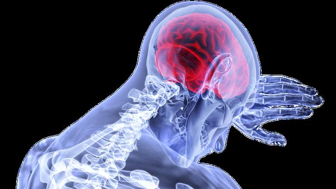 Kidney Injury in Diabetic Ketoacidosis Linked to Brain Injury