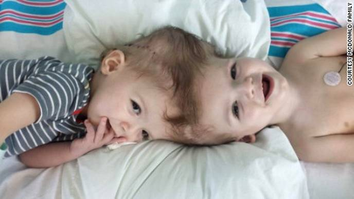 what causes some twins to be born conjoined be part of the