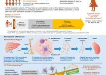 Pediatric Immune Thrombocytopenia