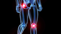 New Gene Therapy Treatment for Osteoarthritis