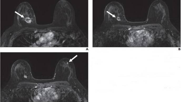 New Suspicious Lesions on Breast MRI in Neoadjuvant Therapy