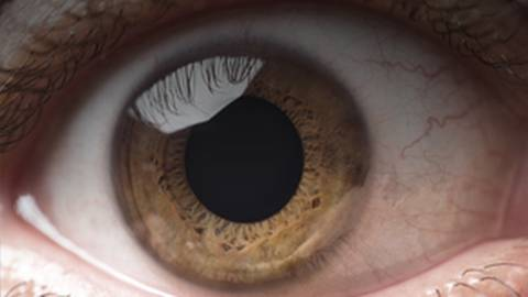 Uveitis: What Should Your Priority Be for Your Patients?