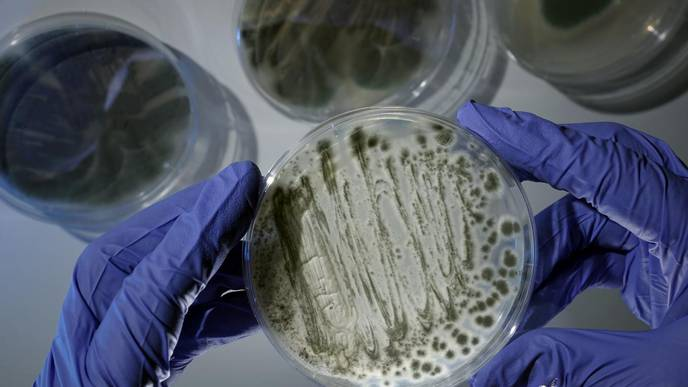 New Discoveries on Deadly Fungus—Possibly a Key for Treatment