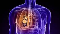 Two-drug immunotherapy deemed safe for lung cancer patients