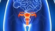 'Breast Cancer Gene'BRCA1 Linked to Aggressive Uterine Cancer