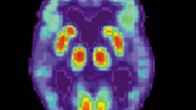 'Crosstalk' Between Genes Promotes Brain Inflammation in Alzheimer's