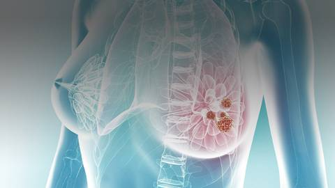 Applying Real-World Evidence to Improve Clinical Decision-Making for Patients with HR-positive/HER2-negative Metastatic Breast Cancer