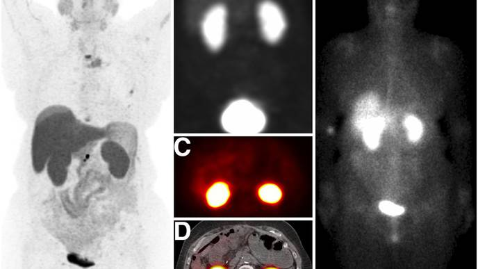 PET Offers Precise Screening Method to ID Candidates for Radionuclide Therapy
