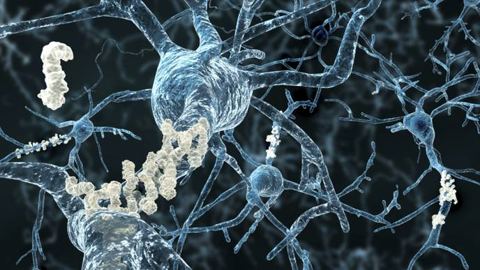 This Gene Variant May Offer Potential Treatment for Alzheimer's Disease